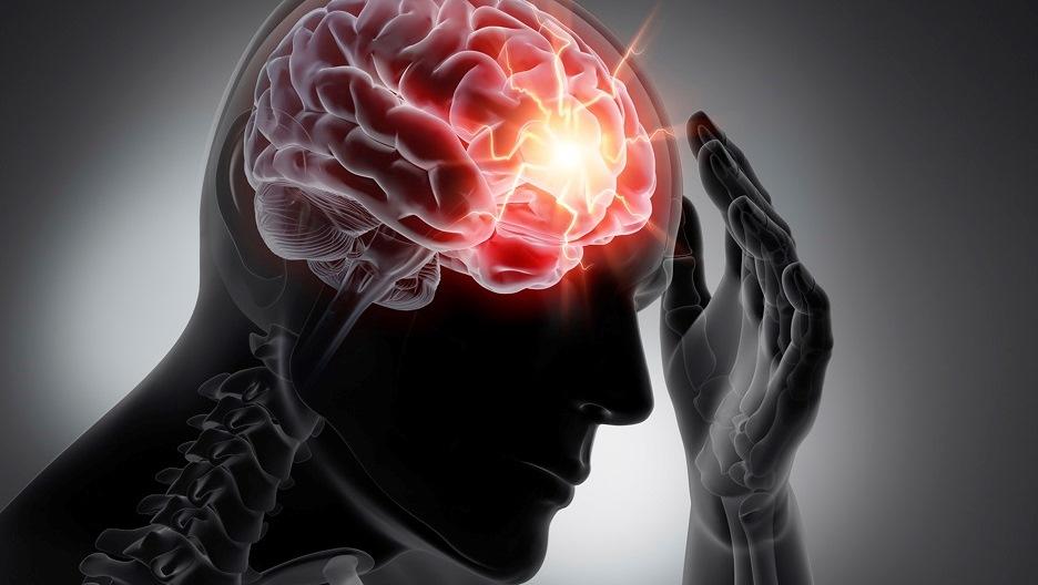 Vrai/faux sur l'épilepsie