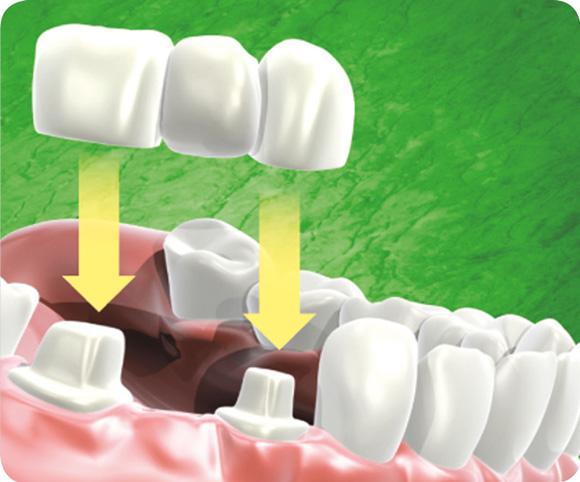 Prothèse dentaire - Bridge
