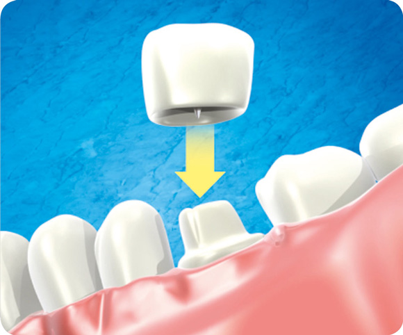Prothèse dentaire - couronne