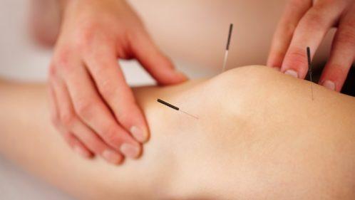L'acupuncture : « Oublier le symptôme et soigner la personne »