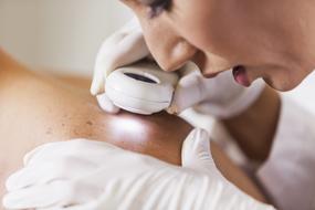 Une dermathologue