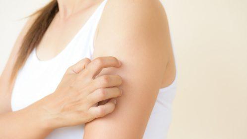 Urticaire : quand la peau réagit trop