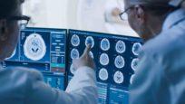 Intelligence artificielle : une aide au diagnostic pour les médecins