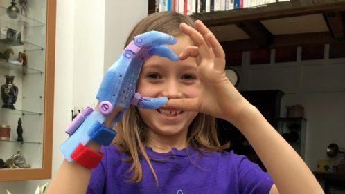 E-Nable : des bénévoles impriment des aides techniques pour des enfants nés sans main