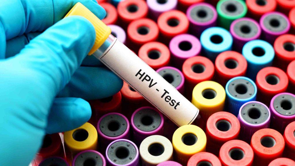 Test HPV (+ recoltare - raclaj col uterin- specialist) - Genetic Lab