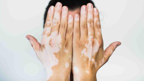 Le vitiligo : ça se soigne