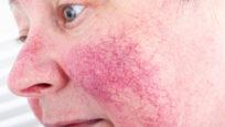 rosacée visage